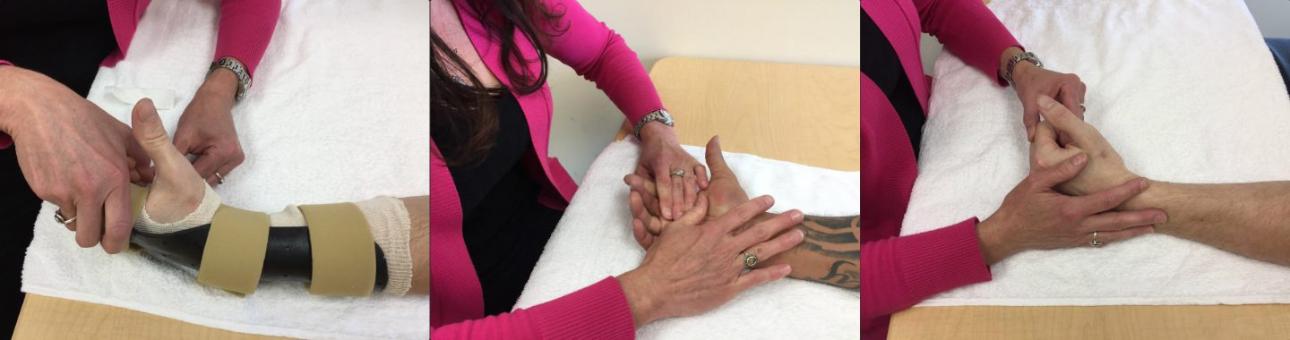 Hand Therapy and Certified Hand Therapy - Bacharach Bacharach