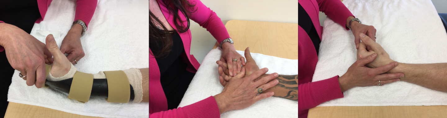Hand Therapy And Certified Hand Therapy Bacharach Bacharach